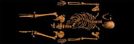 Richard III  Skeleton, University of Leicester copyright