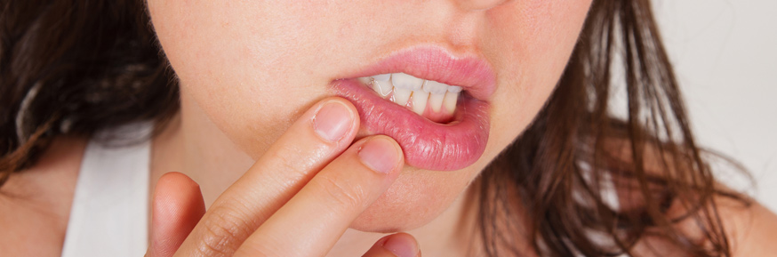 The herpes simplex virus type 1 causes the common lip cold sore