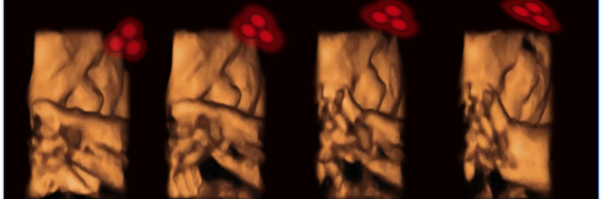 4D ultrasound of a fetus tracking the stimulus.